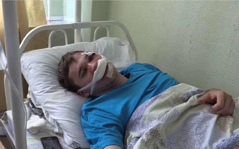 Получил сотрясение мозга пролежал в больнице