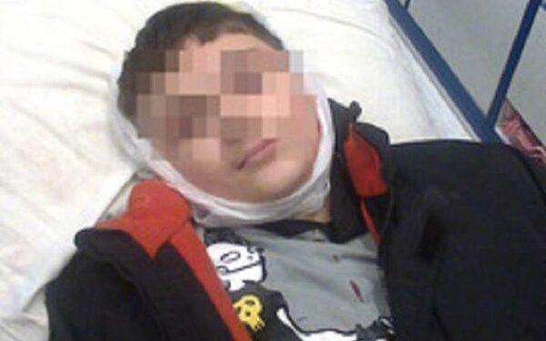 раненый мальчик в горловке