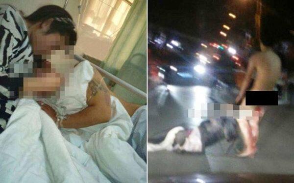 Жительница Китая, поймав мужа на измене, дважды отрезала ему детородный орган, ФОТО