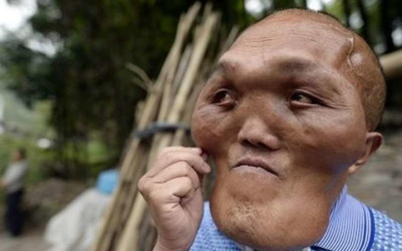 человек с головой инопланетянина