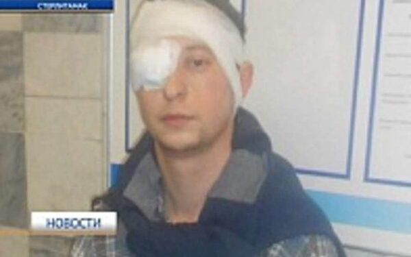 Мужчина лишился глаза, пытаясь защитить женщину от грабителя
