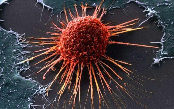 К 2050 году люди моложе 80 лет перестанут умирать от рака